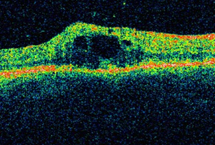 Tomographie de la rétine