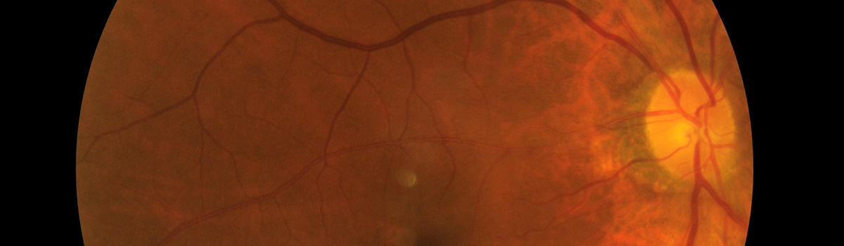 nerf optique